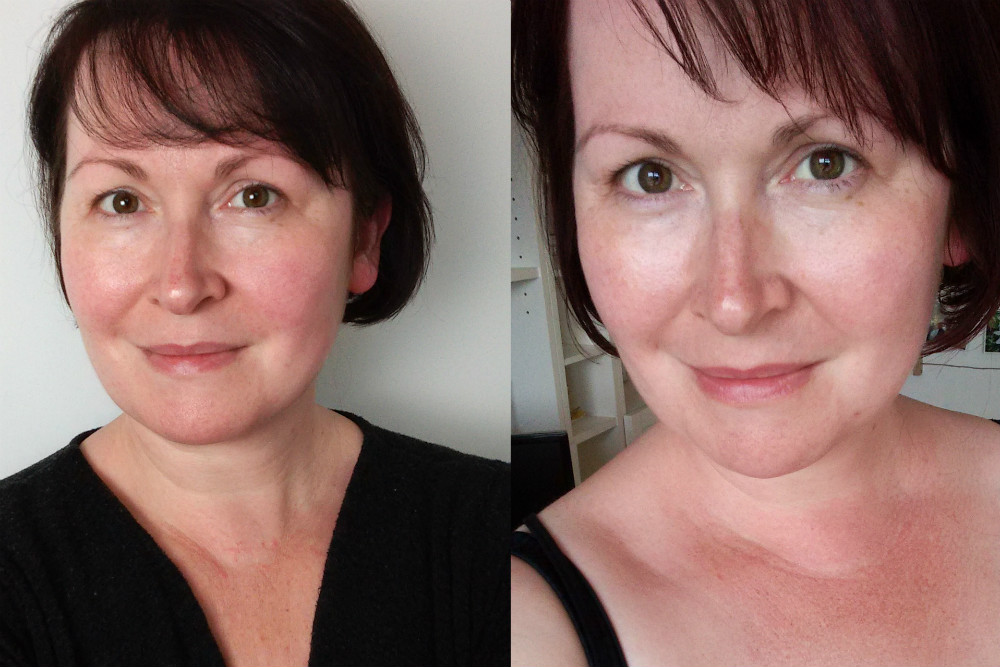 Before and after using Anne Semonin Brightening Serum and Cream for three weeks (#ad)